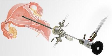 Endoskopik Cerrahi